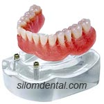 2 Implants + Ball + Overdenture in Dental Bangkok, Thailand
