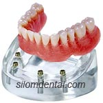4 Implants + Bar attachment + Overdenture in Dental Bangkok, Thailand