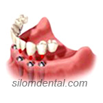 4 Implants + Ball + Overdenture in Dental Bangkok, Thailand