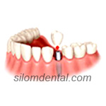 1 Implant & 1 Crown in Dental Bangkok, Thailand