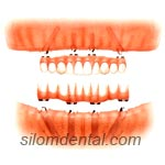 All-on-4 + Overdenture in Bangkok, Thailand