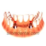 Dental Implants support Dental Bridges