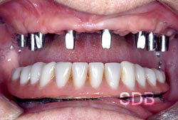 upper 8 Implants and lower implants + overdenture
