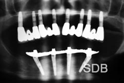 Dental Implant x-ray for full upper/lower implants replacement