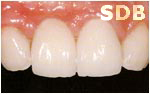 NobelRondo Alumina Crowns and Veneers (after)