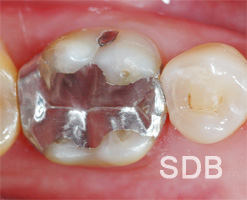 Amalgam Filling Operative Dental Clinic Bangkok Thailand