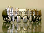 Titanium Framework in Dental Thailand
