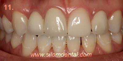 Beautiful Teeth Now Concept dental implant Clinic Bangkok ...