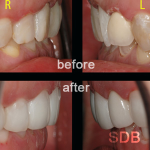 before-after composite facing
