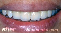 After Dental Extreme Makeovers, dental crown clinic bangkok thailand