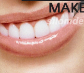 Dental Makeover