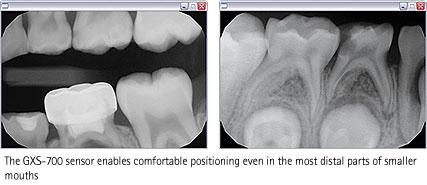 A Dental Clinic Bangkok Thailand Digital Intraoral Dental