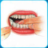 "The image ""http://www.silomdental.com/dental_thai/dental_tips/pic/oa9.JPG"" cannot be displayed, because it contains errors."