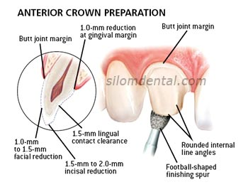 anterior e.max crown preparation