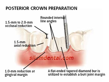 prosterior e.max crown preparation
