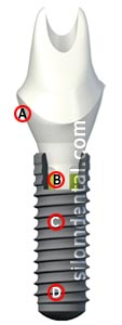 Straumann Bone Level Implant